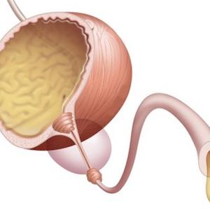 Склероз шейки мочевого пузыря