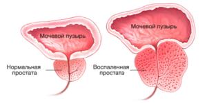 недержание мочи после удаления аденомы простаты лечение