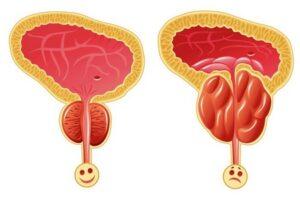 недержание после удаления аденомы простаты